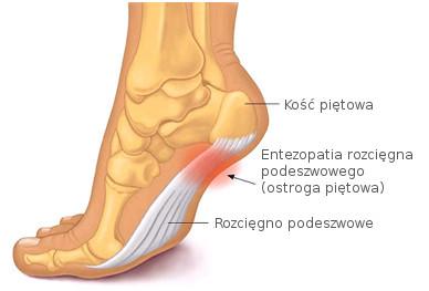 Rys. 1 Entezopatia rozcięgna podeszwowego (ostroga piętowa)