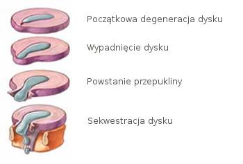 Rys. 1. Etapy powstawania przepukliny krążka międzykręgowego