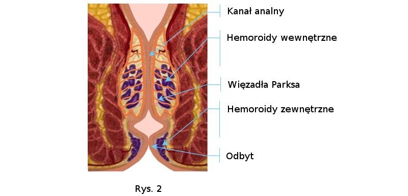 Powstanie hemoroidów