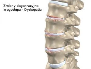 Zmiany zwyrodnieniowe kręgosłupa - dyskopatia